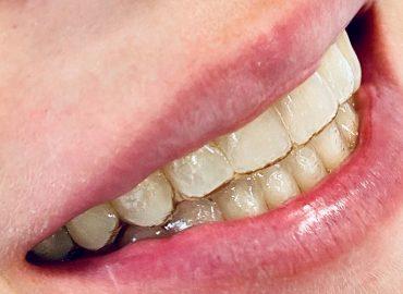 Ortodoncia Invisible.